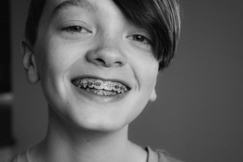 Därför kan man behöva reglera tänderna